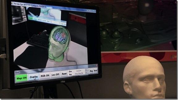 kinect-fusion-muestra tumores en 3D